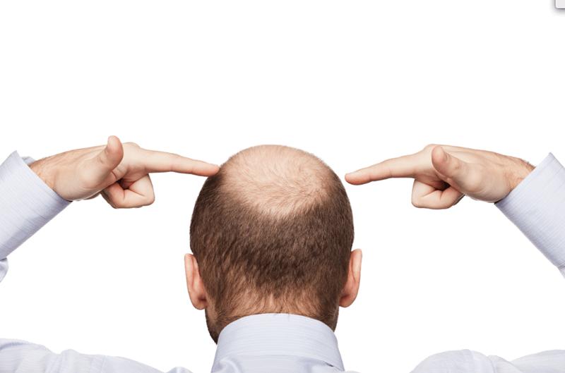 hói da đầu ở nam