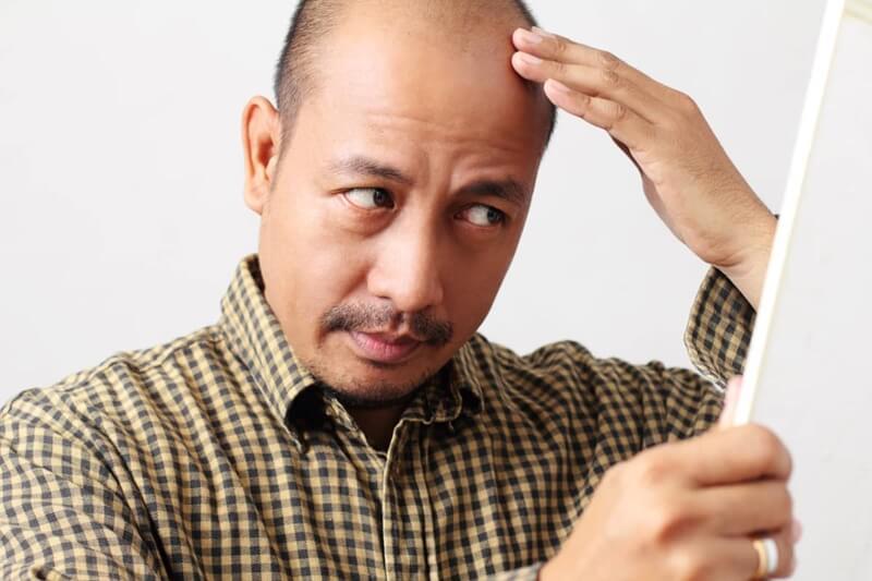 nguyên nhân gây rụng tóc sớm