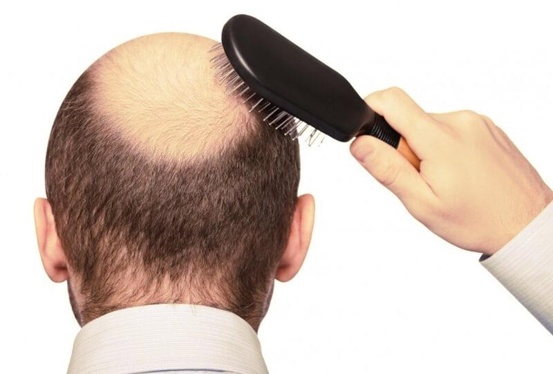 rụng tóc sớm do đâu?